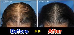 hairmax1