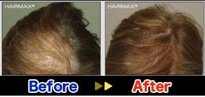 hairmax6