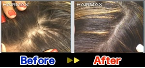 hairmax7