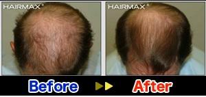 hairmaxman1
