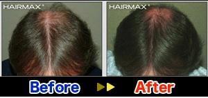 hairmaxman2