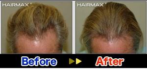 hairmaxman3