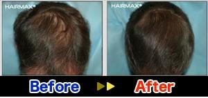 hairmaxman4