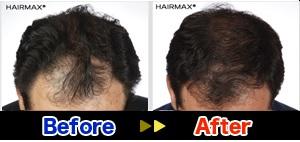 hairmaxman8