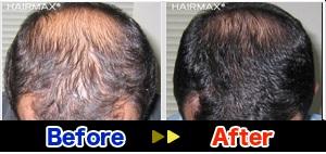 hairmaxman9