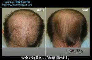 hairmax4