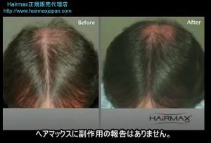 hairmax5