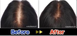 hairmax2