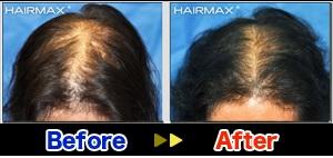hairmax3