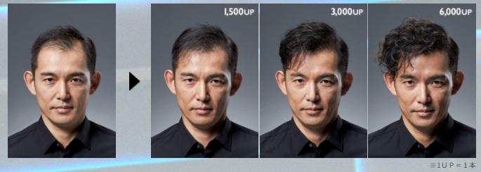 増毛の経過画像