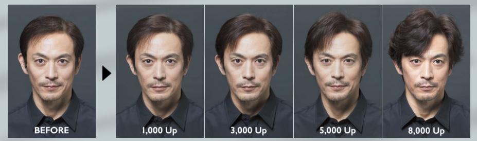 アデランス増毛の変化