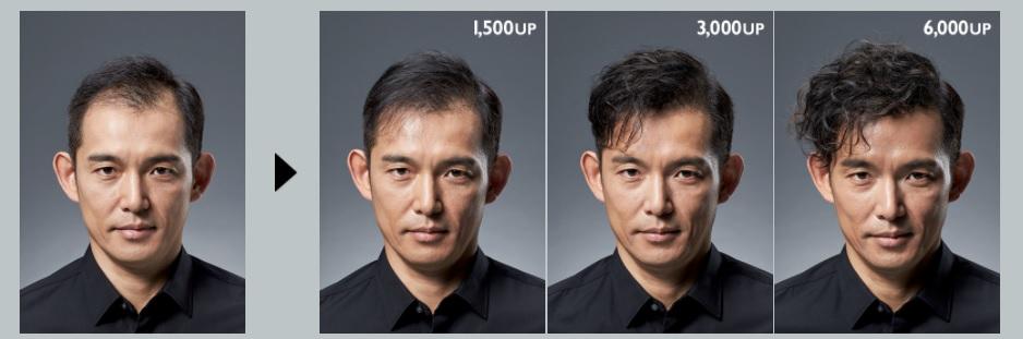 アデランス増毛の変化1