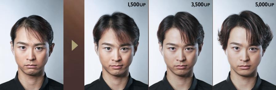 アデランス増毛の変化2